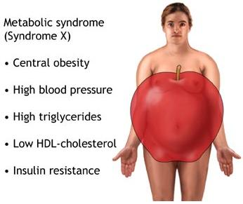 Liver transplant patients have high rates of metabolic syndrome